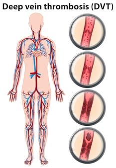 Deep vein thrombosis anatomy