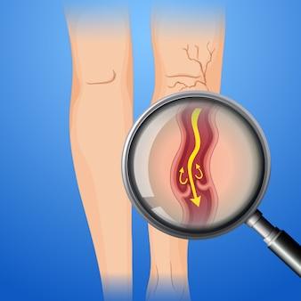 Deep vein thrombosis on leg