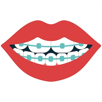 白で隔離される歯ブレース漫画