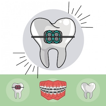 Элементы зубчатых брекетов