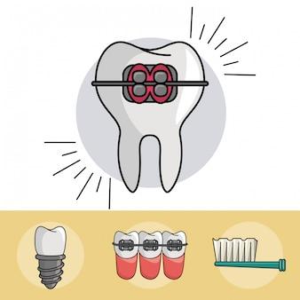 Dental braces elements