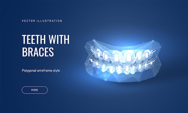 Dental braces illustration in futuristic polygonal style