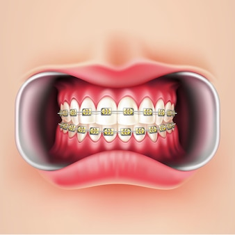歯科用ブレースの取り付け