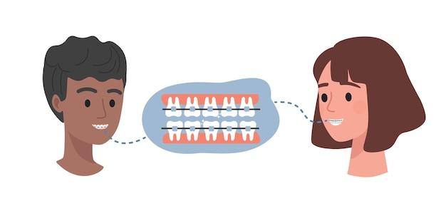 Зубные брекеты на плоской иллюстрации зубов