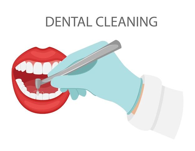 치아의 치과 청소. 장갑을 낀 손에는 치과용 연마 드릴이 있습니다. 미용,미용치과