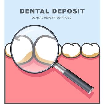 Зубной налет - ряд зуба под увеличительным стеклом