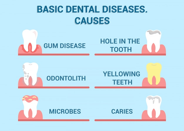 Dental diseases, cavity illness  info poster