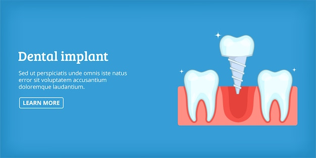 Dental implant banner horizontal, cartoon style