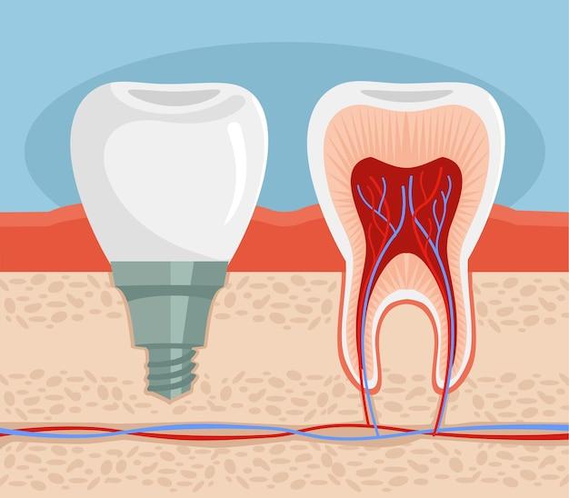 Зубной имплантат плоская иллюстрация Premium векторы