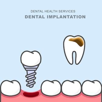 う蝕歯の代わりに歯科用インプラント-義歯