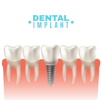 Dental implant model side view poster