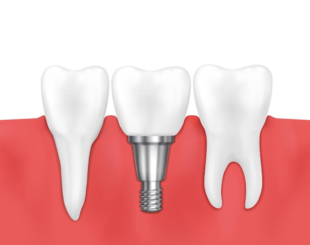 Dental implant and normal tooth  illustration