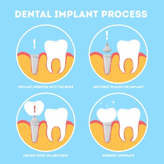 Dental implant process. medical treatment and dentistry.