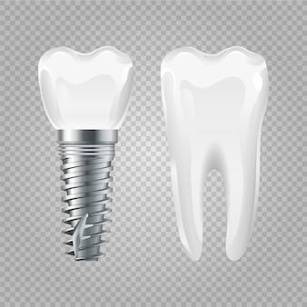 歯科インプラント。現実的な健康な歯とインプラント。歯科手術の要素