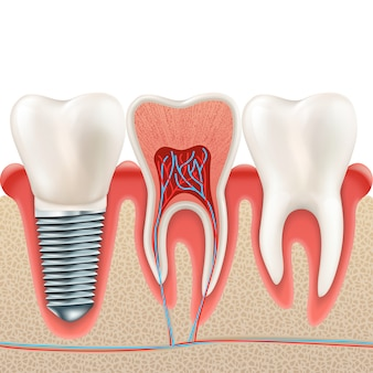 Dental implant set.
