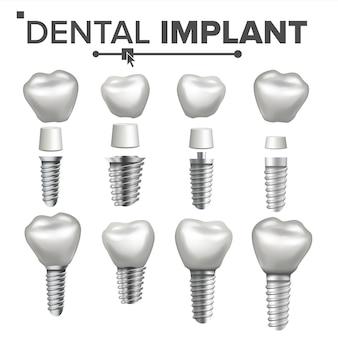 Dental implant set