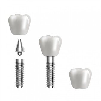 Dental implant structure illustration. 3d realistic   background.