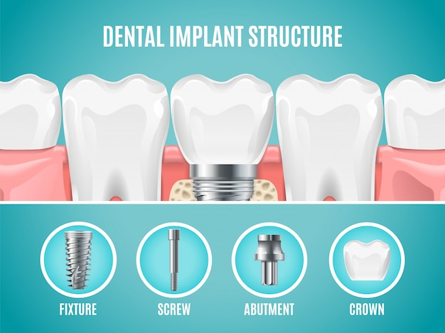 歯科インプラント構造。現実的な歯のインプラントカット。歯科手術バナー
