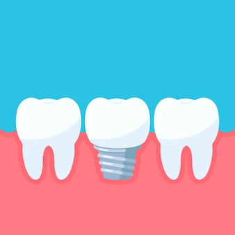 Dental implant and teeth in the gum tooth with implant symbol of dental clinic