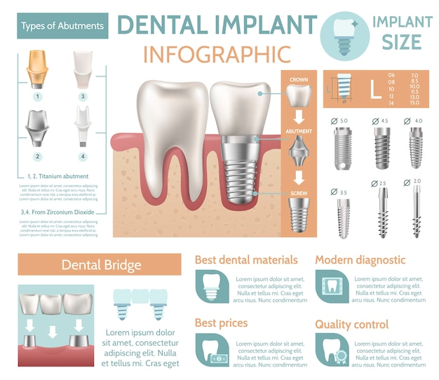 Dental implant tooth care medical center dentist clinic website infographic