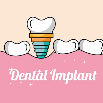 Dental implant tooth and gum inside mouth