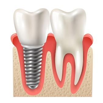 Зубной имплантат набор зубов