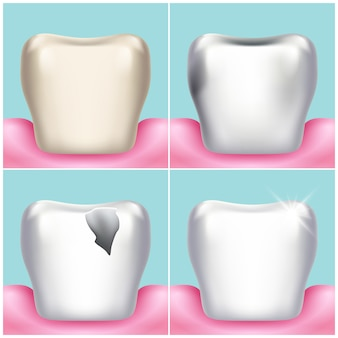 Dental problems, caries, plaque and gum disease, healthy tooth illustration. stomatology and