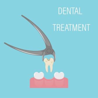 Удаление зуба. экзодонтия. зуб в зубных щипцах. профессиональный стоматологический инструмент.