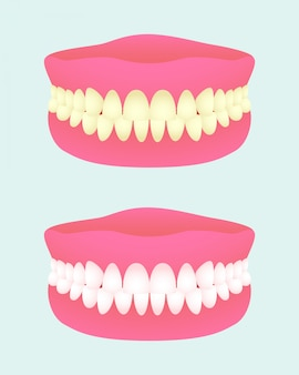 Denture in two health states. dental implant with different teeth colors. sick and healthy teeth jaw. medical items.