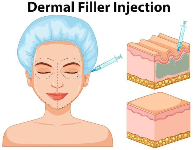 皮膚充填剤注射情報