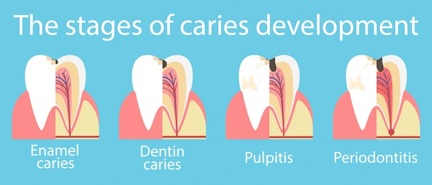 Development of dental caries banner