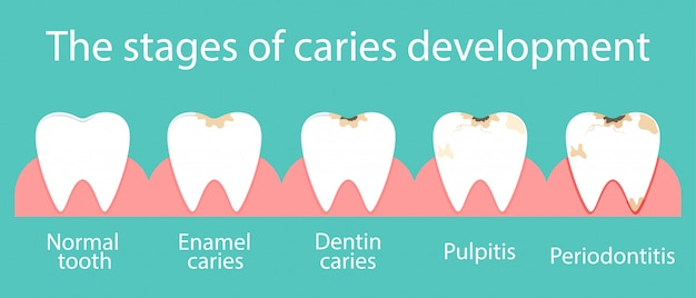 Development of dental caries in the oral cavity.
