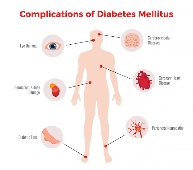 Diabetes complications medical educational chart  with affected human organs damages depiction and description flat
