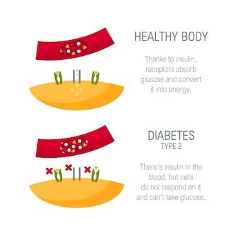 당뇨병 유형 2 개념. 플랫 스타일의 의료 다이어그램.