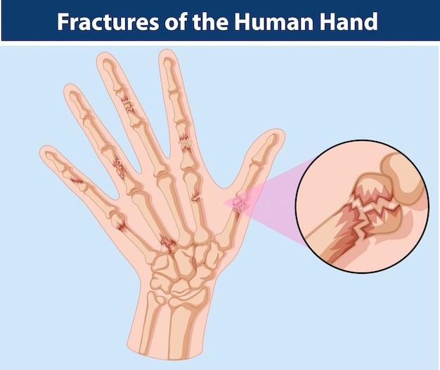 Diagram of fractures in human hand