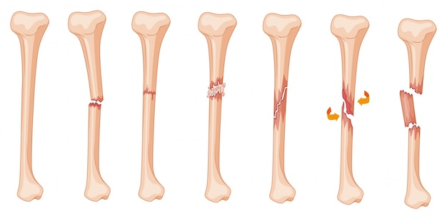Diagram of leg fracture in different stages illustration