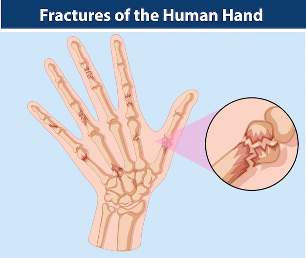 인간의 손에 골절의 다이어그램