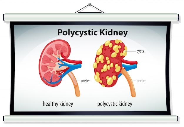 Diagram of polycystic kidney