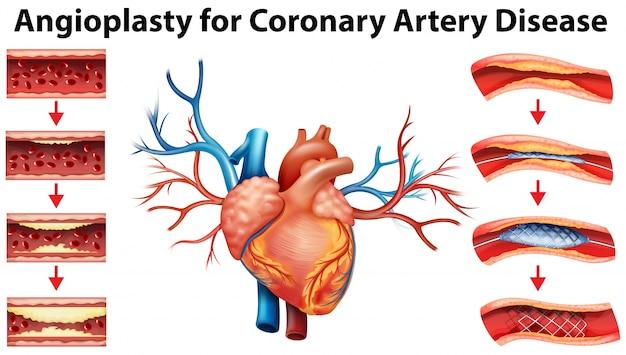 관상 동맥 질환에 대한 혈관 성형술을 보여주는 다이어그램