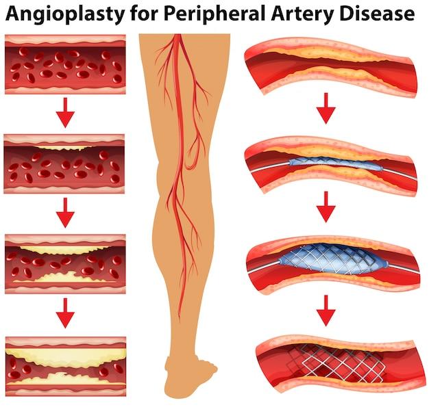 말초 동맥 질환에 대한 혈관 성형술을 보여주는 다이어그램
