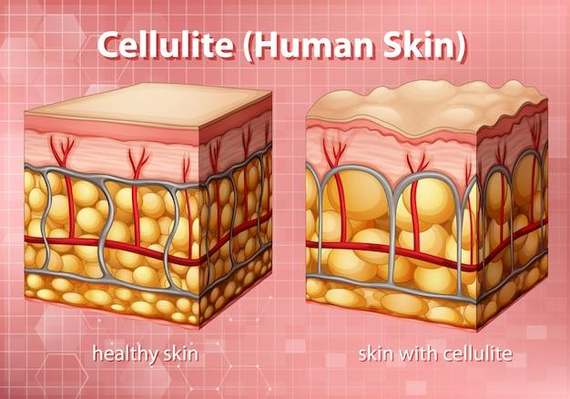 人間の皮膚のセルライトを示す図