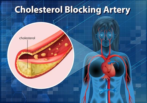 인체의 콜레스테롤 차단 동맥을 보여주는 다이어그램