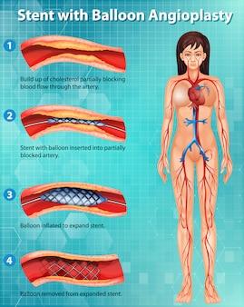 人体のコレステロール遮断動脈を示す図