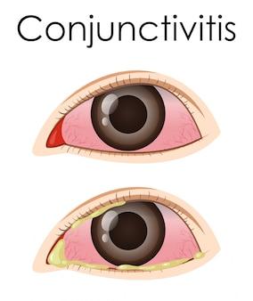 ヒトの結膜炎を示す図