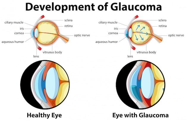 Diagram showing development of glaucoma