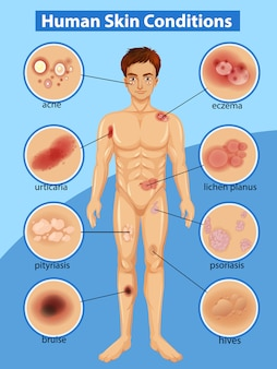 Diagram showing differen human skin conditions