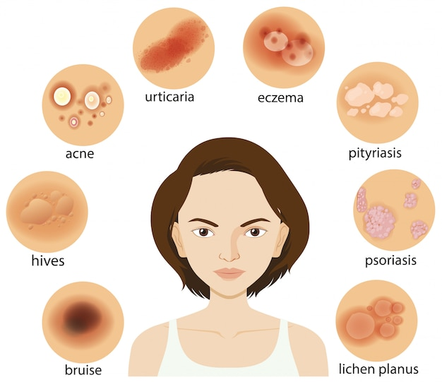 Diagram showing different skin conditions