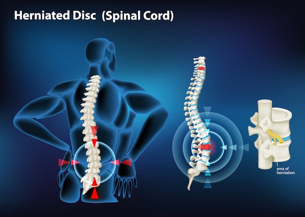 Diagram showing herniated disc in human