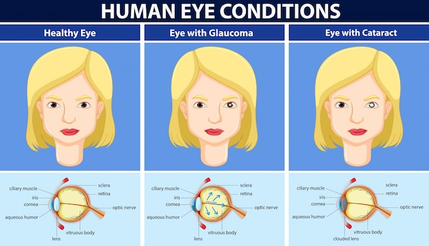 Diagram showing human eye conditions