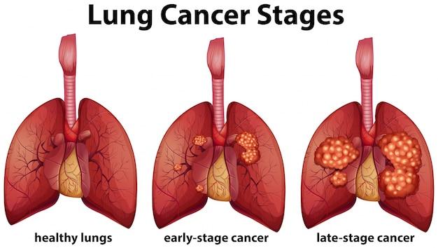 Диаграмма, показывающая стадии рака легкого